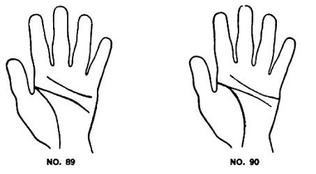 Image result for Short Thin Life Line in palmistry